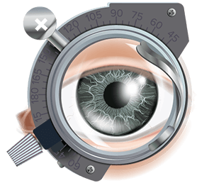 investigatii-oftalmologie-1